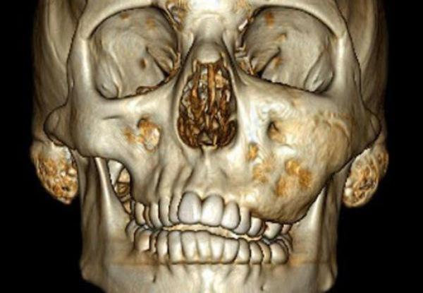Лечение дисплазии челюсти в зависимости от сложности случая