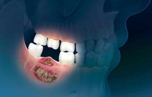 Классификация остеонекроза челюсти