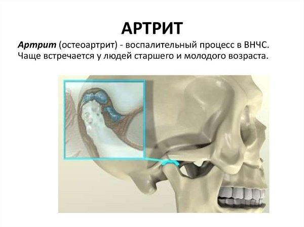 Диагностика артрита ВНЧС
