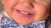 Гипоплазия эмали зубов у детей лечение