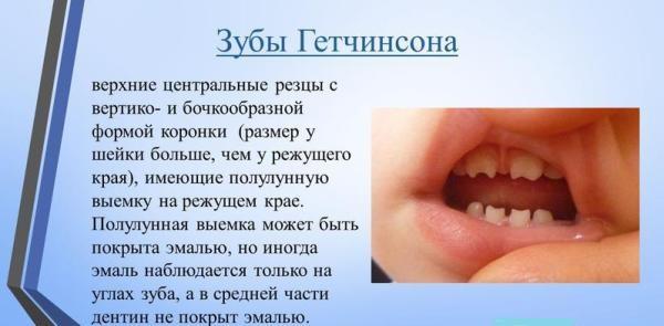 Зубы гетчинсона это