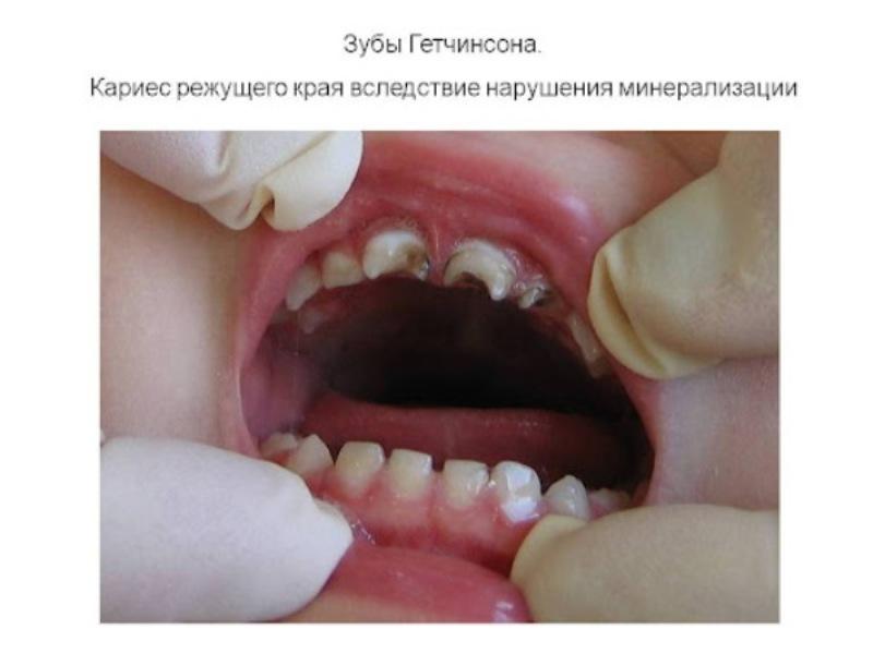 Чем отличаются зубы Гетчинсона от Фурнье